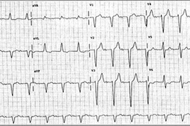 An 80-Year-Old Man with Rhinorrhea, Cough, and Intermittent Dizziness