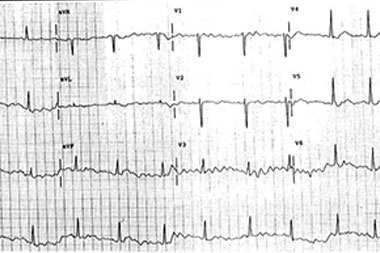 An 88-Year-Old Woman with Several Weeks of Dizziness