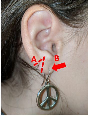 Repair Of Split Earlobe Lacerations In The Urgent Care Journal