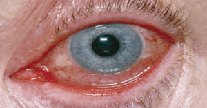 Urgent message: Urgent care is often the first stop for patients experiencing acute eye complaints, including conjunctivitis. The capability to accurately distinguish between infectious conjunctivitis of a viral nature vs that of a bacterial nature is essential to administering appropriate treatment and avoiding inappropriate use of antibiotics.