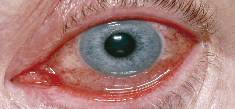 Evaluation of Infectious Conjunctivitis by Clinical Evaluation and Novel Diagnostics