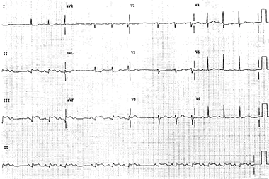 Multiple Findings Including STEMI, Low Voltage, and Type 2 AV Block in a 72-Year-Old Woman