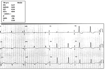 A 78-Year-Old with Dizziness and No Chest Pain, Shortness of Breath, or Diaphoresis