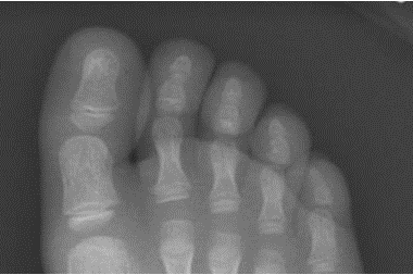 A 6-Year-Old Boy with Foot Pain After Tripping a Day Earlier