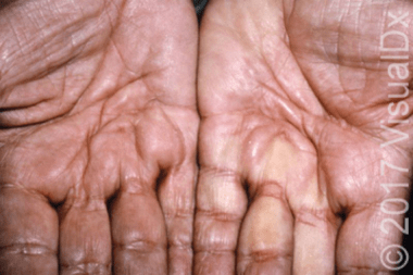 A 70-Year-Old Man with Hand Numbness and Pain