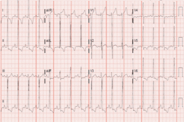 A 69-Year-Old Man with a 2-Month History of Shortness of Breath and Mild Chest Pain