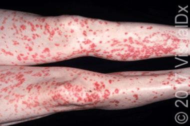 A 42-Year-Old Male with a New Symmetrical Rash on His Legs