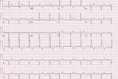 A 58-Year-Old Female with Syncope