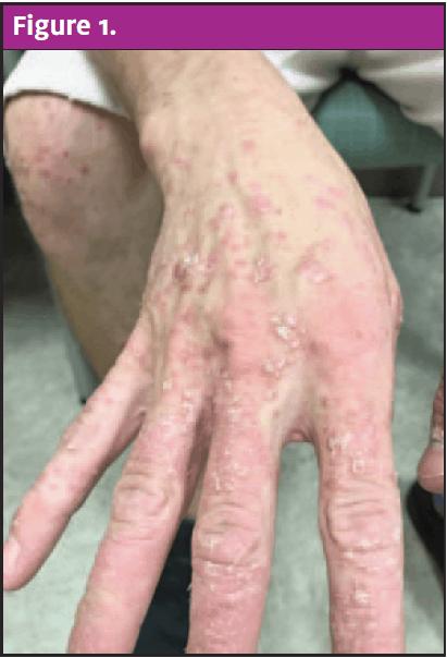 Guttate Progress 3 Months Of Dead Sea Salt Baths Steroid Creams