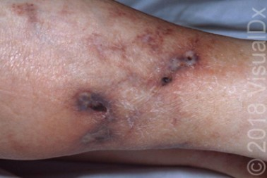 A 72-Year-Old Female with Lesions on Her Lower Legs