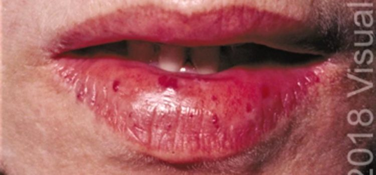 A 22-Year-Old Female with Frequent Nosebleeds and Abnormalities on Her Lips and Tongue