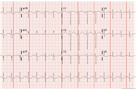 A 20-Year-Old Female with an Array of Gastro Symptoms
