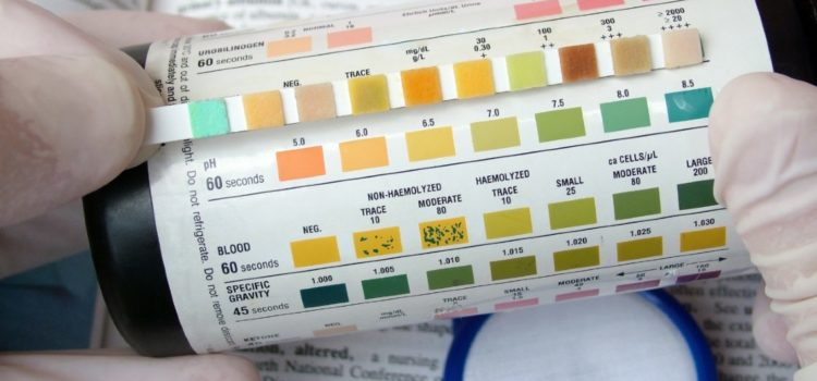 Urinalysis: A Simple Test with Complicated Interpretation