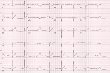 A 67-Year-Old Male with Classic Signs of Myocardial Infarction