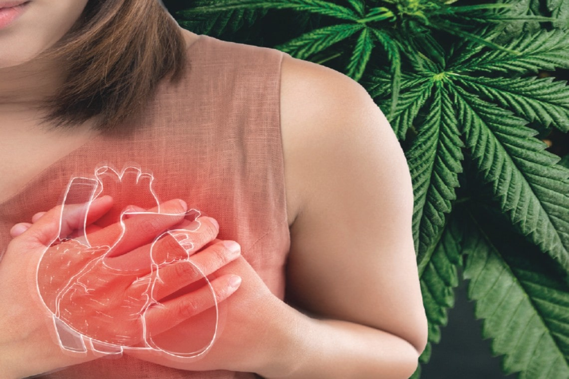 Cannabis-Associated Myocardial Infarction in a Young Woman Without Other Cardiac Risk Factors
