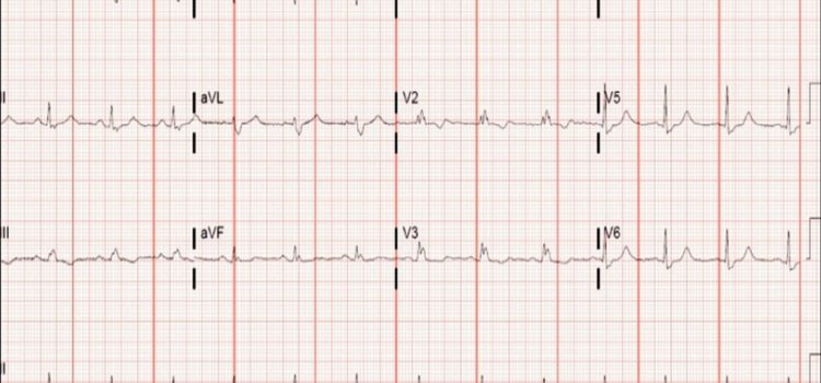 A 42-Year-Old Male with an Abnormal ECG