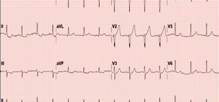 Chest Pain in a 44-Year-Old Male: Is It Too Early for Emergent Coronary Intervention?