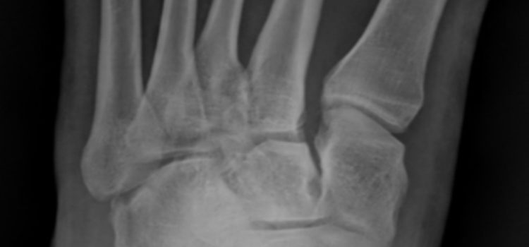 A 28-Year-Old Woman with Foot Pain After a 10-Foot-Fall