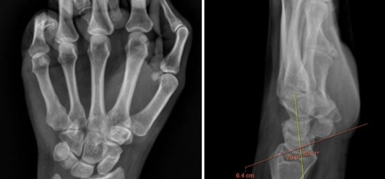 A 46-Year-Old Woman with Wrist Pain After Hearing a 'Snap'