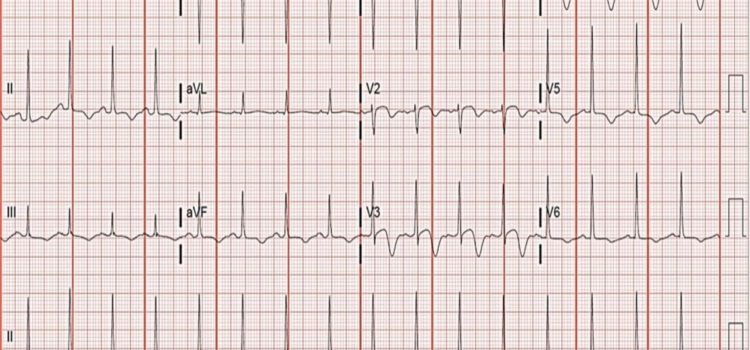 A 60-Year-Old Woman with a 4-Day History of Intermittent Exertional Chest Pain
