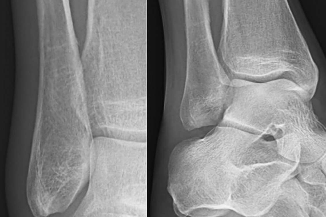 A 45-Year-Old Female Runner with Lower Extremity Pain
