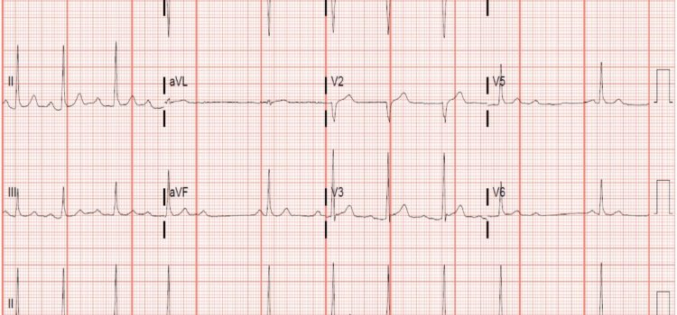 A 46-Year-Old Man with 'Burning' Epigastric Pain of Several Hours Duration