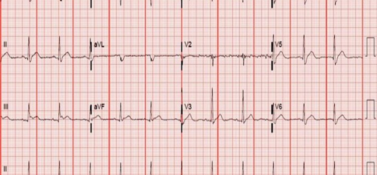 A 48-Year-Old Female with Months of Fatigue, Nausea, and Body Aches—Including Chest Pain