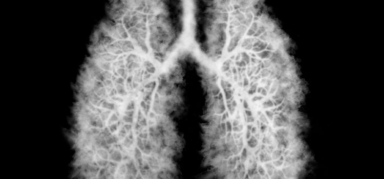 Vaping-Associated Lung Injury (EVALI) Presenting to Urgent Care