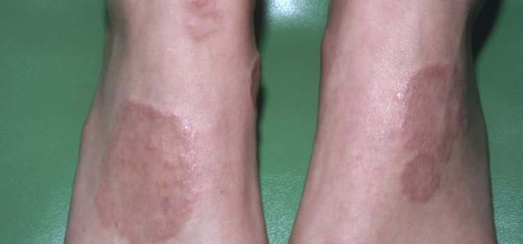 A 25-Year-Old Woman with Plaques on Her Elbows and Feet