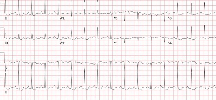 A 74-Year-Old Female with Multiple Episodes of Chest Pain Over a 2-Day Period