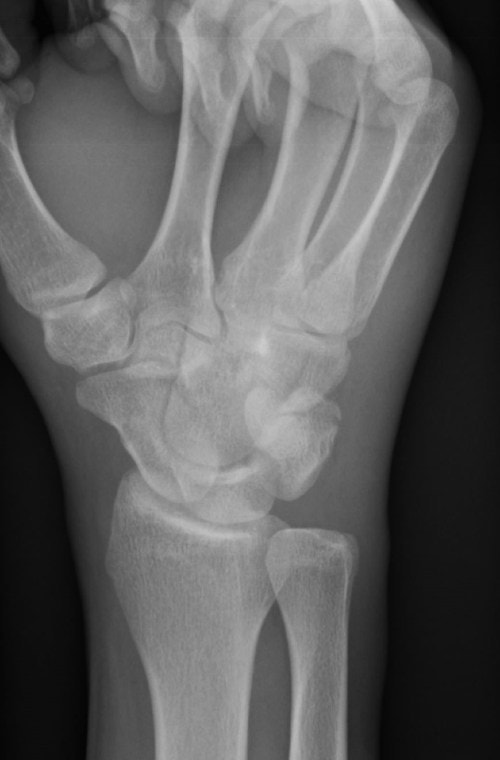 Boxer with Wrist Pain