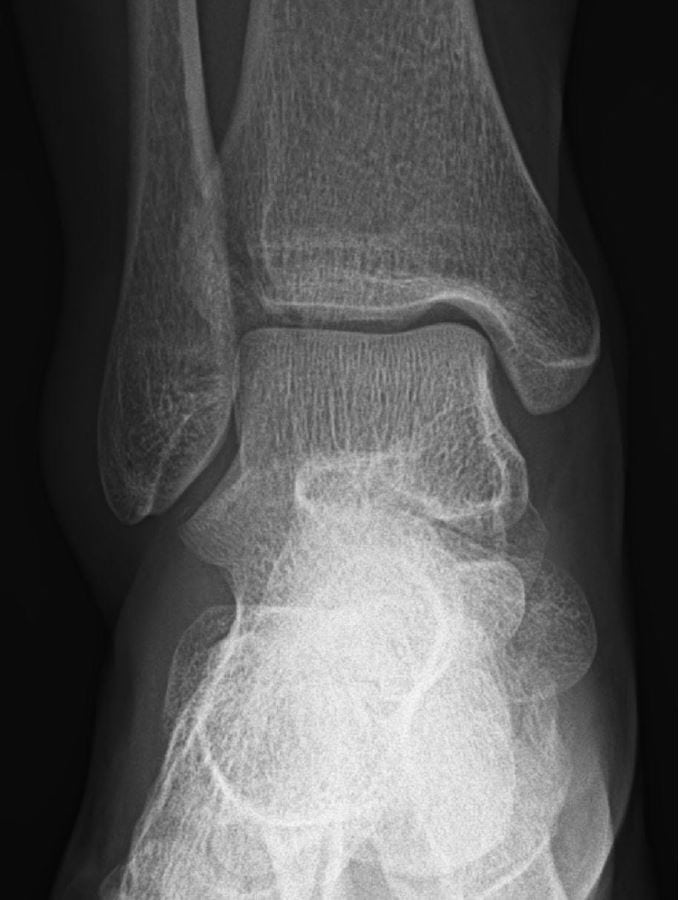 X-ray image 2 of the 24-year-old with pain after a fall