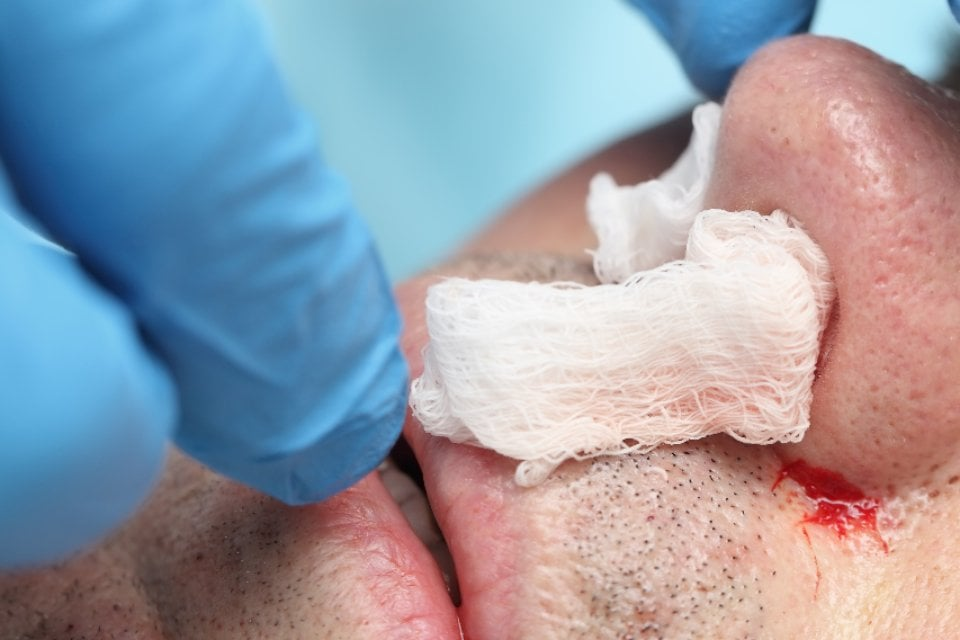 Epistaxis: A Clinical Review