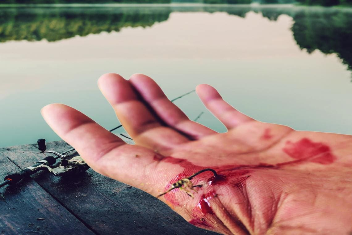 An Urgent Care Approach to Fishhook Removal