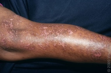 A 71-Year-Old with Diabetes and Discoloration of the Skin