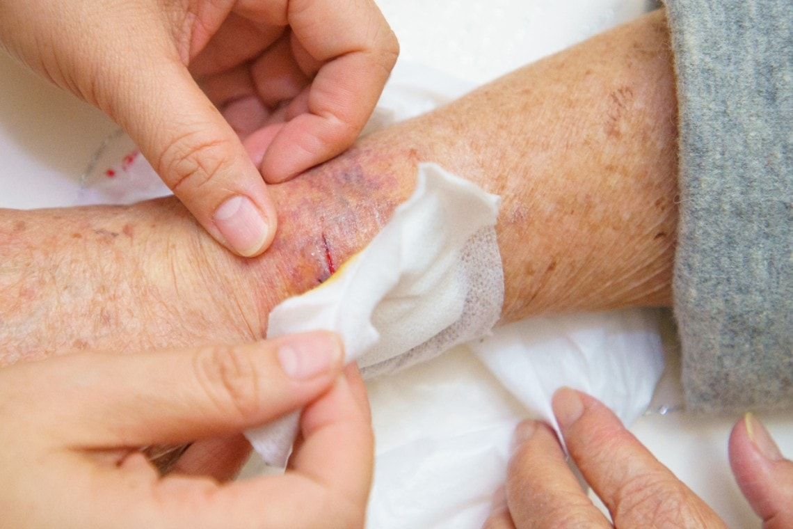 Urgent Care Management of Lacerations in the Elderly Patient