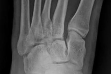 A 28-Year-Old with Foot Pain After a Fall