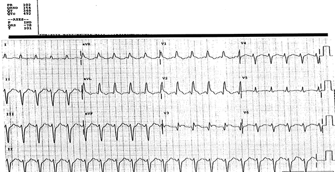 A 45-Year-Old Woman with Acute Chest Pain