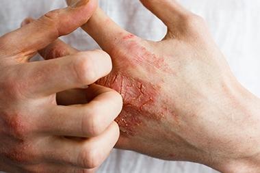 Eczema-Patients