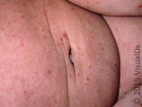 Figure 10_enteroviral_infection