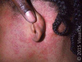 Figure 2A_measles_29607