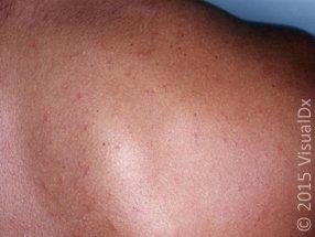 Figure 3B_measles-adult-dark_73846