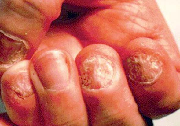 Assessment and Management of Common Hand Infections