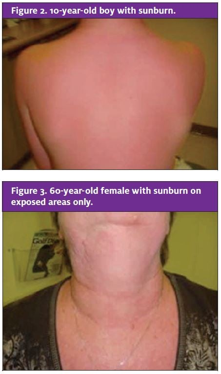 Here Comes the Sunburn: An Update | Journal of Urgent Care Medicine