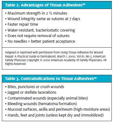 Using Tissue Adhesives In Urgent Care Journal Of Urgent Care Medicine