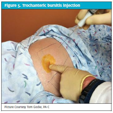 An Urgent Care Approach to Joint and Soft-Tissue Injection