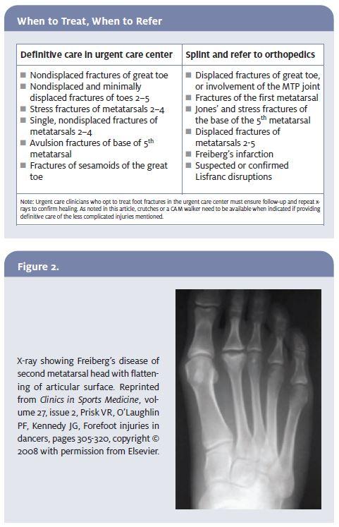 Managing Foot Fractures in Urgent Care | Journal of Urgent