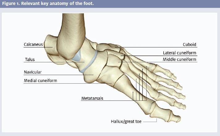 Managing Foot Fractures In Urgent Care Journal Of Urgent Care Medicine