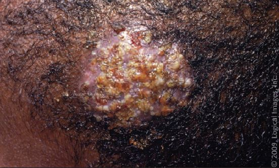 Identifying and Treating Superficial Fungal Infections in