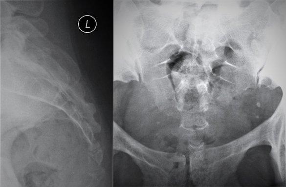 photo Unexplained Hip Pain